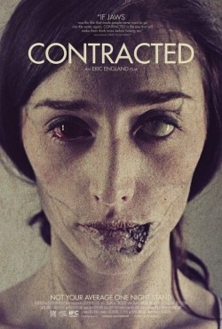 Contracted pictures.